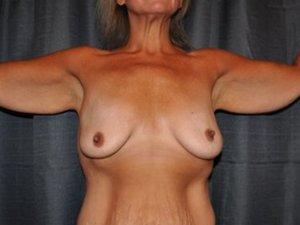 Manhattan Breast Augmentation Before 7